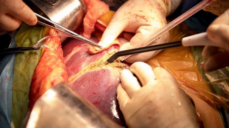 REUSITA IN MEDICINA ROMANEASCA: Tumora hepatica giganta operata cu succes